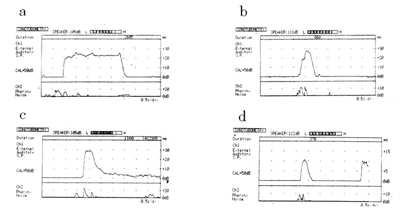 Recordings of sonotubometry before and just after treatment