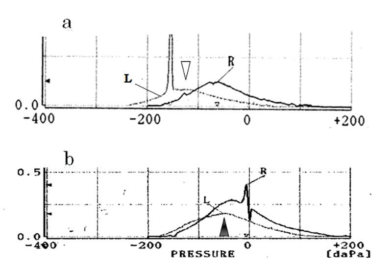 Tympanograms recorded before and just after treatment