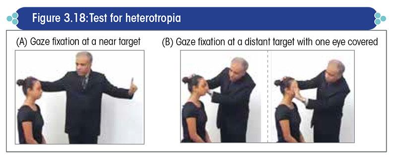 Test for heterotropia