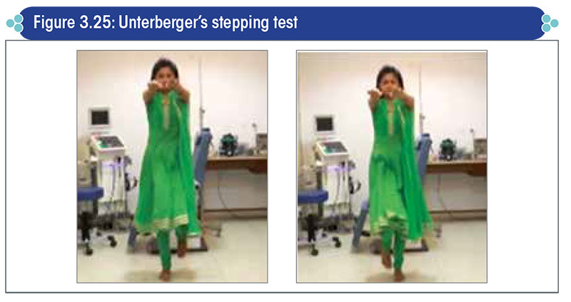 Unterberger's stepping test