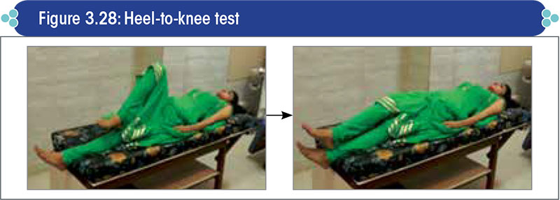 Heel-to-knee test