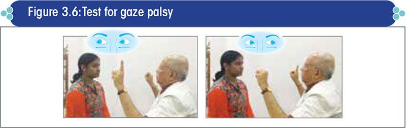 Test for gaze palsy