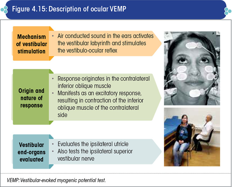 Description of ocular VEMP
