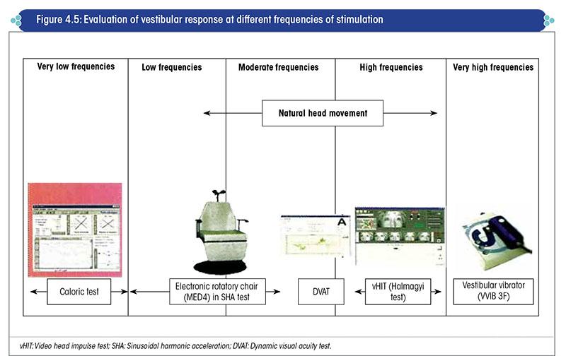 Evaluation of vestibular response at different frequencies of stimulation