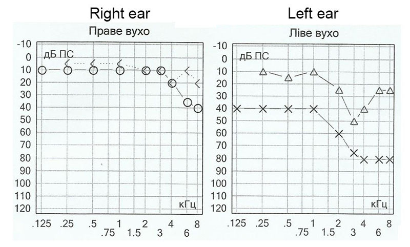 Example of audiogram in the delayed period. Patient КС, 36 y.o., blast injury one year ago. Hearing decrease both by bone and air conduction