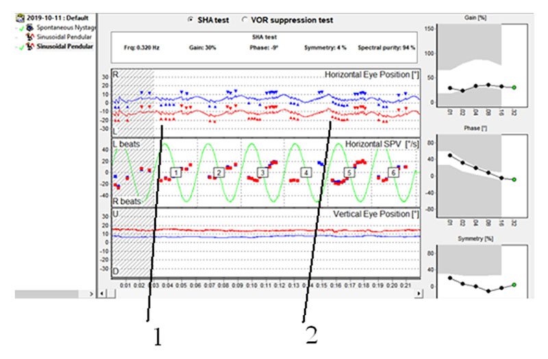 Nystagmus Frequencies and Slow Phase Velocities in Patient SMI, 31 y.o. 1 – indicates slow frequency and 2 – high frequency at the similar phases of chair movements. Spectral purity nevertheless is high