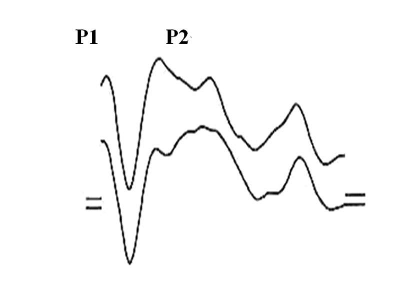 General image of long latency VestEP